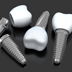 Animation of of implant supported dental crowns