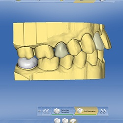 CEREC dental restoration plan